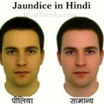 Jaundice in Hindi | पीलिया एक जानलेवा बीमारी