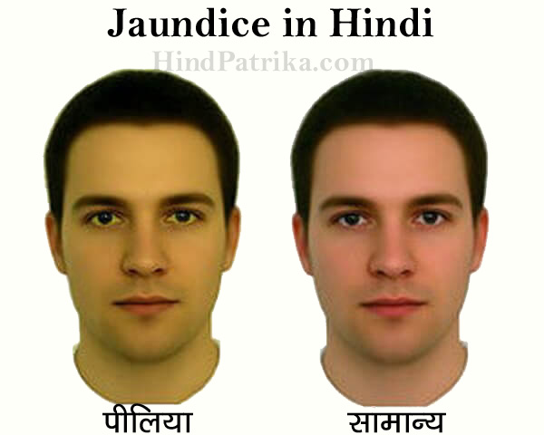 Jaundice in Hindi
