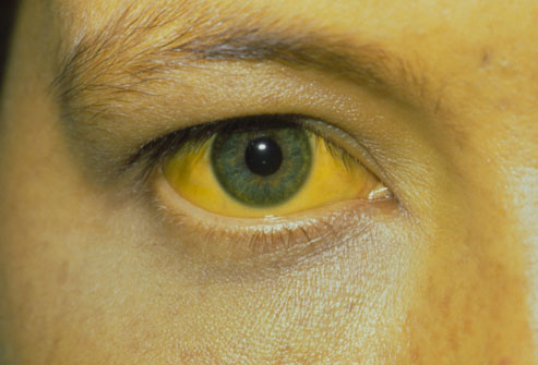 Jaundice Symptoms